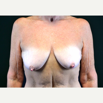 55-64 year old woman treated with Breast Implants before 3440905