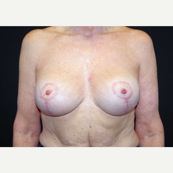 55-64 year old woman treated with Breast Implants after 3440905