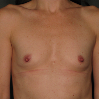 25-34 year old woman treated with Breast Augmentation before 3043234