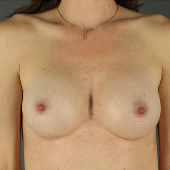 25-34 year old woman treated with Breast Augmentation after 3043234