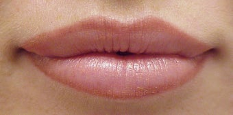 lip enhancement after 1021263