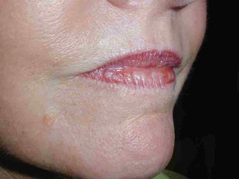 Juvederm and Botox to upper lip before 108816