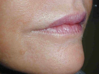 Juvederm and Botox to upper lip