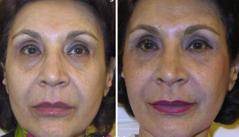 63 year old female treated with a non-surgical facelift before 1101931
