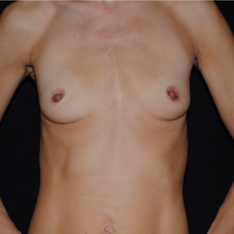 35-44 year old woman treated with Breast Implants before 3849527