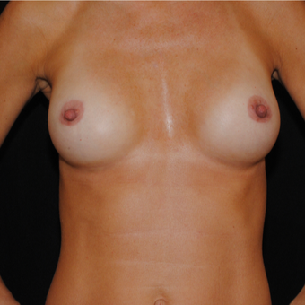 35-44 year old woman treated with Breast Implants after 3849527