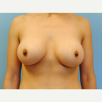 25-34 year old woman treated with Breast Augmentation after 3054489