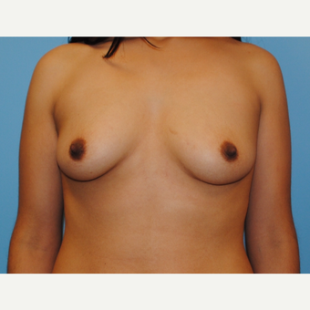 25-34 year old woman treated with Breast Augmentation before 3054489