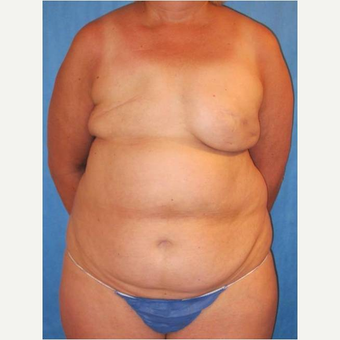 57 year old woman treated with DIEP flap Breast Reconstruction Revision before 3725223