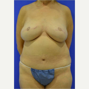 57 year old woman treated with DIEP flap Breast Reconstruction Revision after 3725223