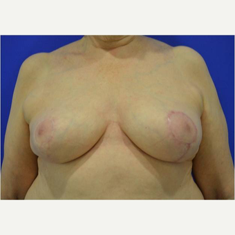 65-74 year old woman treated with Breast Reduction after 3727358