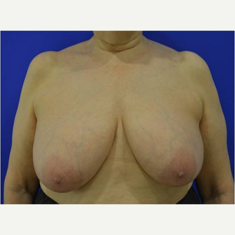 65-74 year old woman treated with Breast Reduction before 3727358