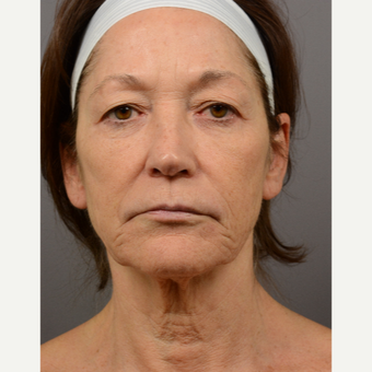 55-64 year old woman treated with Skin Rejuvenation