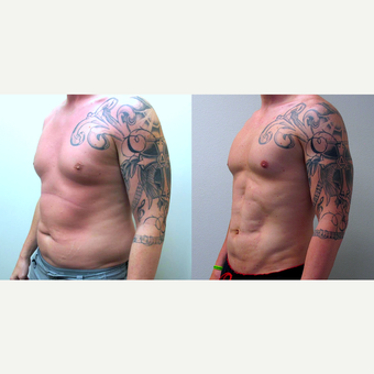 25-34 year old man treated with Vaser Liposuction before 2248419
