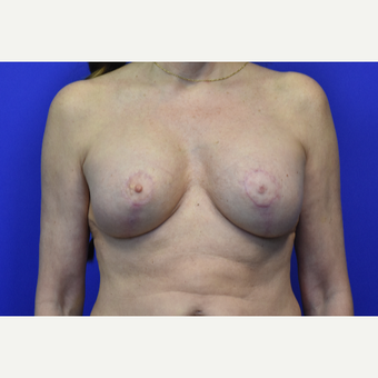 55-64 year old woman treated with Breast Lift after 3326043
