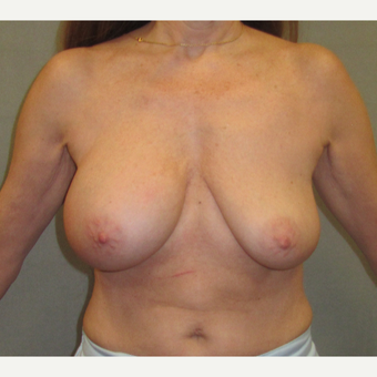 55-64 year old woman treated with Breast Lift before 3326043