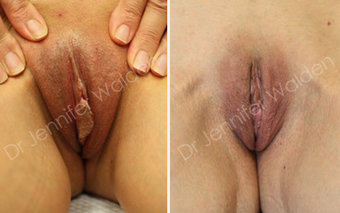 Labiaplasty before 1112605
