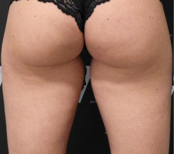 CoolSculpting by Zeltiq for the inner thigh gap before 3133830
