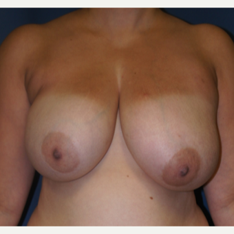 42 year old woman treated with bilateral DIEP flap Reconstruction before 3383388