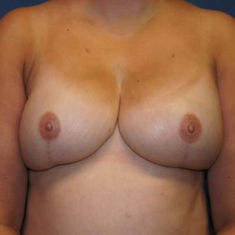 42 year old woman treated with bilateral DIEP flap Reconstruction after 3383388