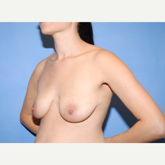 25-34 year old woman treated with Breast Lift with Implants before 3763281