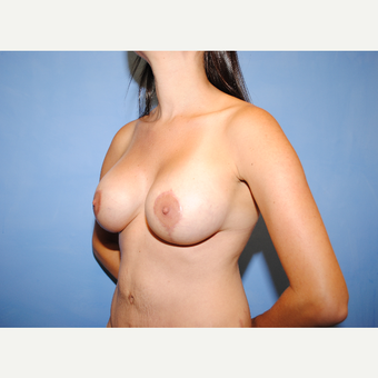 25-34 year old woman treated with Breast Lift with Implants after 3763281