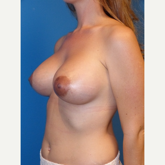 Breast Implants after 3806929