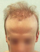 FUE – BHT by SFET Using Body and Head Hair to fix past Scalp Surgery before 195673