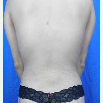 25-34 year old woman treated with Liposuction after 3188274