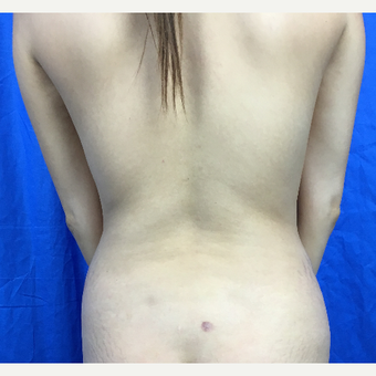 25-34 year old woman treated with Liposuction before 3188274