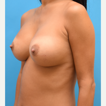 35-44 year old woman treated with Breast Implants after 3259174