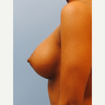 "22 year old 5'3"", 105 pounds, treated with breast implants, A to D cup, silicone after 3623976"