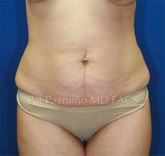 Tummy tuck before 199333