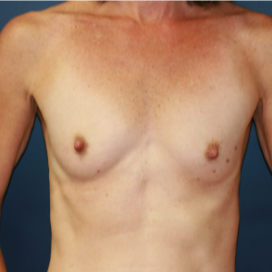 35-44 year old woman treated with Breast Implants before 3595783