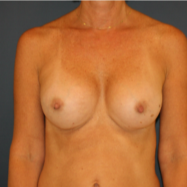 35-44 year old woman treated with Breast Implants after 3595783