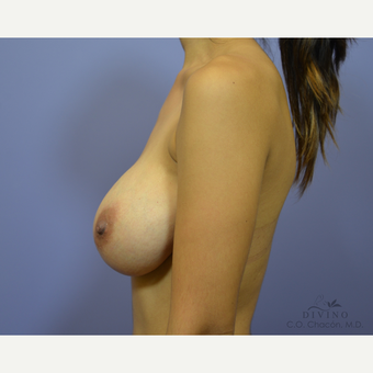 25-34 year old woman treated with Breast Augmentation after 3329362