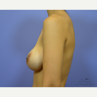 25-34 year old woman treated with Breast Augmentation before 3329362