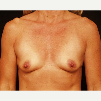 35-44 year old woman treated with Breast Augmentation before 3576320
