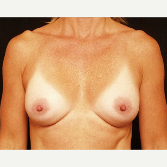 35-44 year old woman treated with Breast Augmentation after 3576320