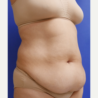 55-64 year old woman treated with Tummy Tuck before 3165565