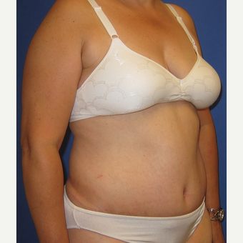 55-64 year old woman treated with Tummy Tuck after 3165565