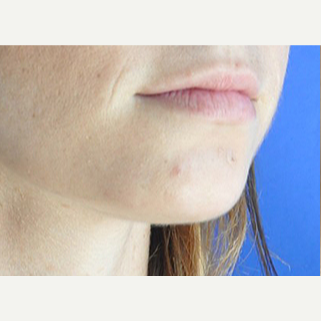 25-34 year old woman treated with Lip Augmentation before 3219461