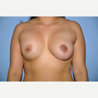 25-34 year old woman treated with Breast Reconstruction (Asymmetry) after 1586797