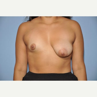 25-34 year old woman treated with Breast Reconstruction (Asymmetry) before 1586797