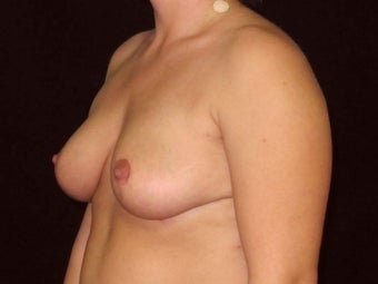 "35 year old female 5'4"" 184# 1184996"