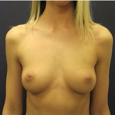 25-34 year old woman treated with Breast Augmentation before 3036504