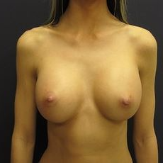25-34 year old woman treated with Breast Augmentation after 3036504