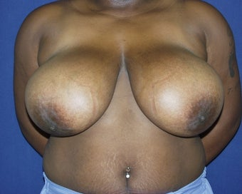 22 yo for breast reduction before 1315375