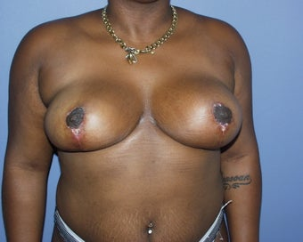 22 yo for breast reduction after 1315375