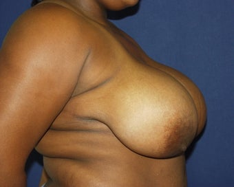 22 yo for breast reduction 1315375